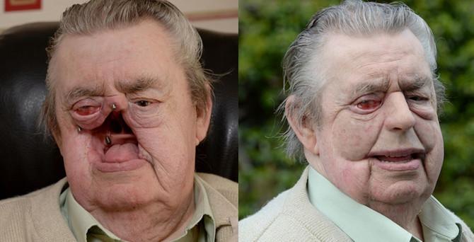 3D Yazıcı ile insan yüzü üretildi
