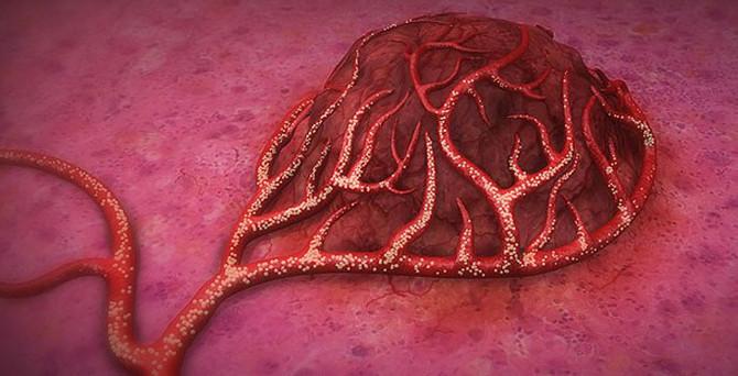 Kolon kanserinde 'kürecik' mucizesi