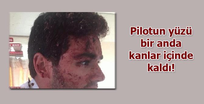 Pilotun yüzü bir anda kanlar içinde kaldı!