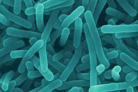 Listeria salgınında ölü sayısı 18'e çıktı