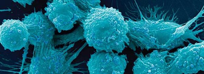 Uyku sorunları, prostat kanseri riskini artırabilir