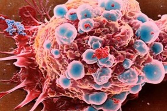 Bağırsak kanserini tetikleyen iki gen bulundu