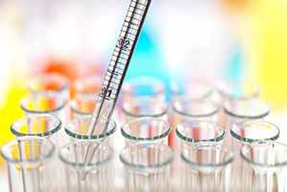TSE'nin 4 yeni laboratuvarı hizmete giriyor