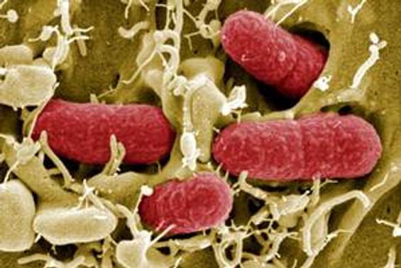 Kanada'da Ebola virüsü şüphesi