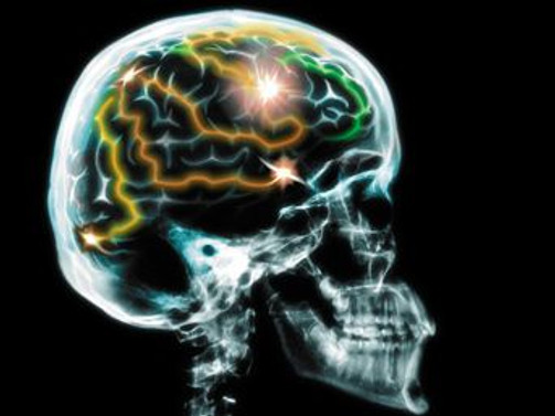 Ölüm anında beyin aktivitesi tavan yapıyor