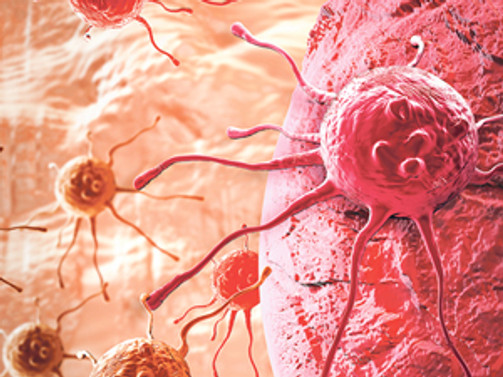 Koltuk altındaki beze, kanser habercisi olabilir