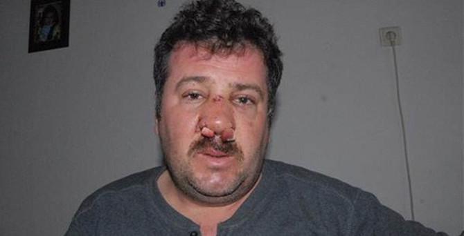 Kaskıyla darp yapan polise soruşturma açıldı