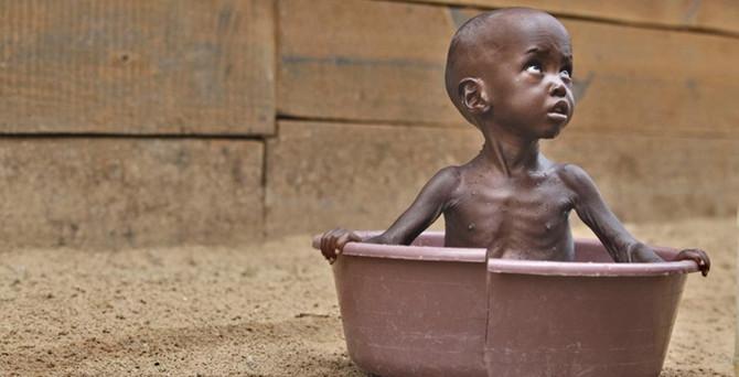 '805 milyon kişi yeterli gıdaya ulaşamıyor'
