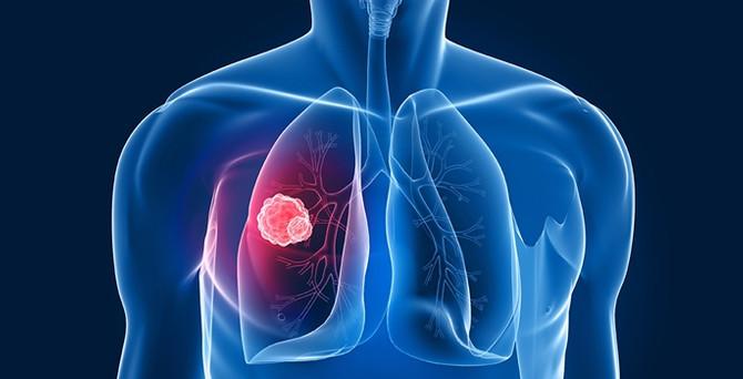 Kanser ölümlerinde akciğer birinci sırada