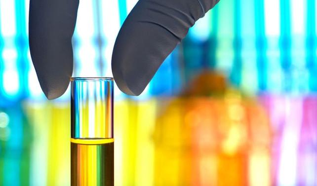 Kimya sanayi ivedi çözüm bekliyor