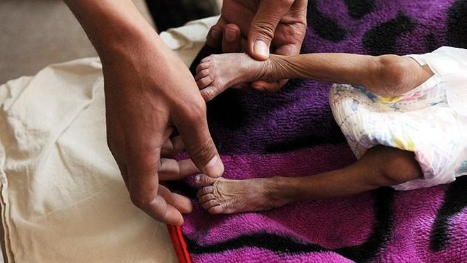 ICRC Sözcüsü Zevkari: Milyonlarca Yemenli aç uyuyor