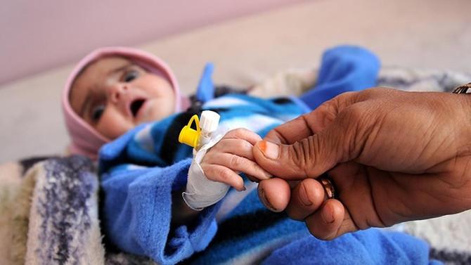 'Yemen'de 10 dakikada 1 çocuk ölüyor'