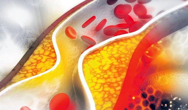 Kolesterolle ilgili A'dan Z'ye her şey