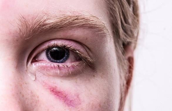Gözyaşı ve çapaklanma koronavirüs belirtisi olabilir