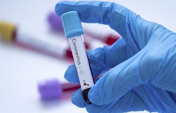 Sağlık Bakanı Koca, ikinci koronavirüs vakasını açıkladı