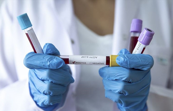 Çalışanlarda koronavirüs salgını ile ilgili endişe azalıyor