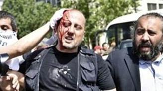 Ahmet Şık eylemde yaralandı