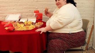 KSÜ, 'morbid obez' hastalarına umut oldu