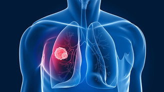 'Elektronik sigara akciğer kanseri riskini artırıyor'