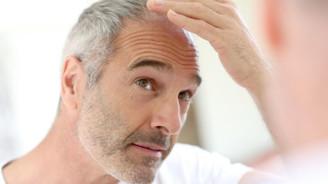 700 bin turist saç ektirmeye geliyor