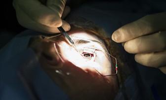 13 Afrika ülkesinde katarakt ameliyatı yapılacak
